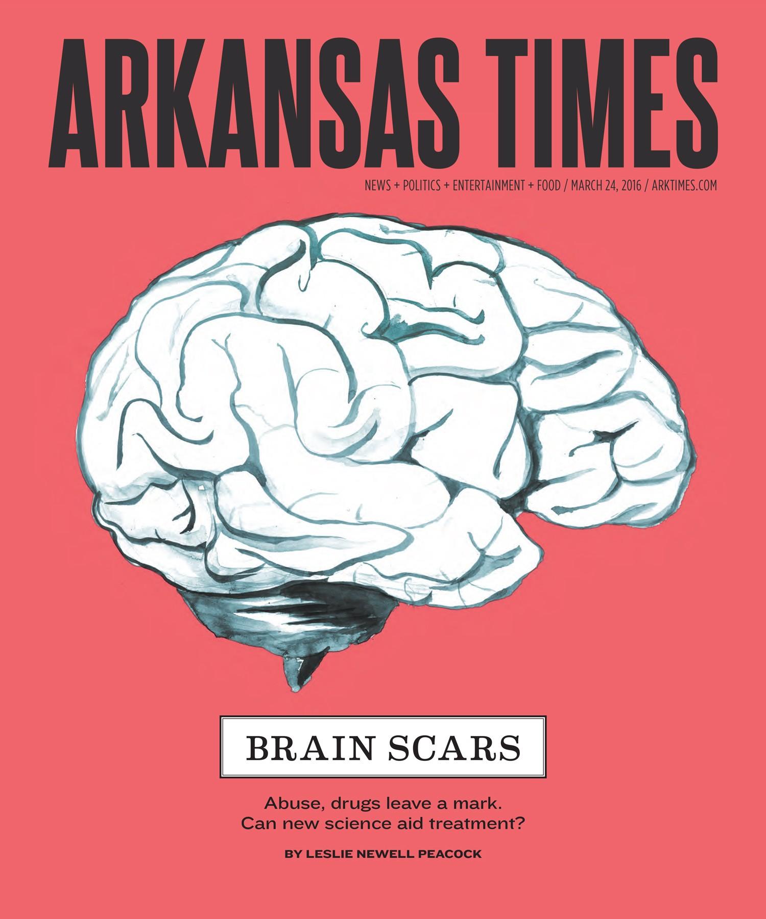 Brain Scars